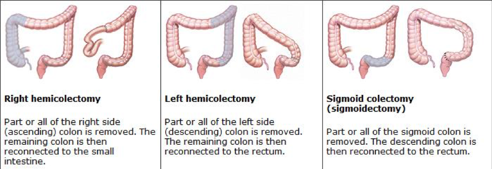 Types of colon surgery