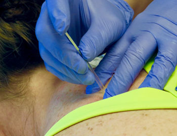 Dry needling at Beebe Healthcare