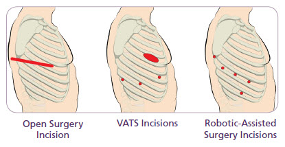 Lung cancer surgery options are available. Here is an illustration showing the different types of procedures and associated incision locations.