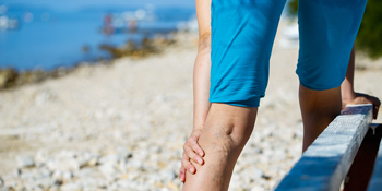 Woman with varicose veins - could it signal a deeper health concern?